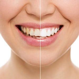 Maui Teeth Whitening