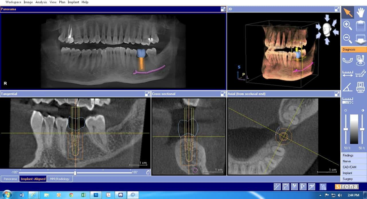 3D imaging screenshot